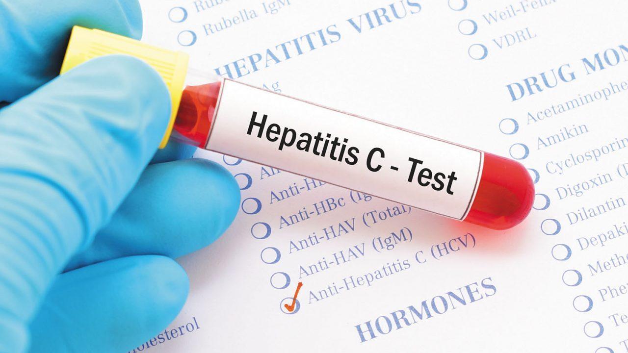 Llaman a prevenir hepatitis y complicaciones como hígado graso